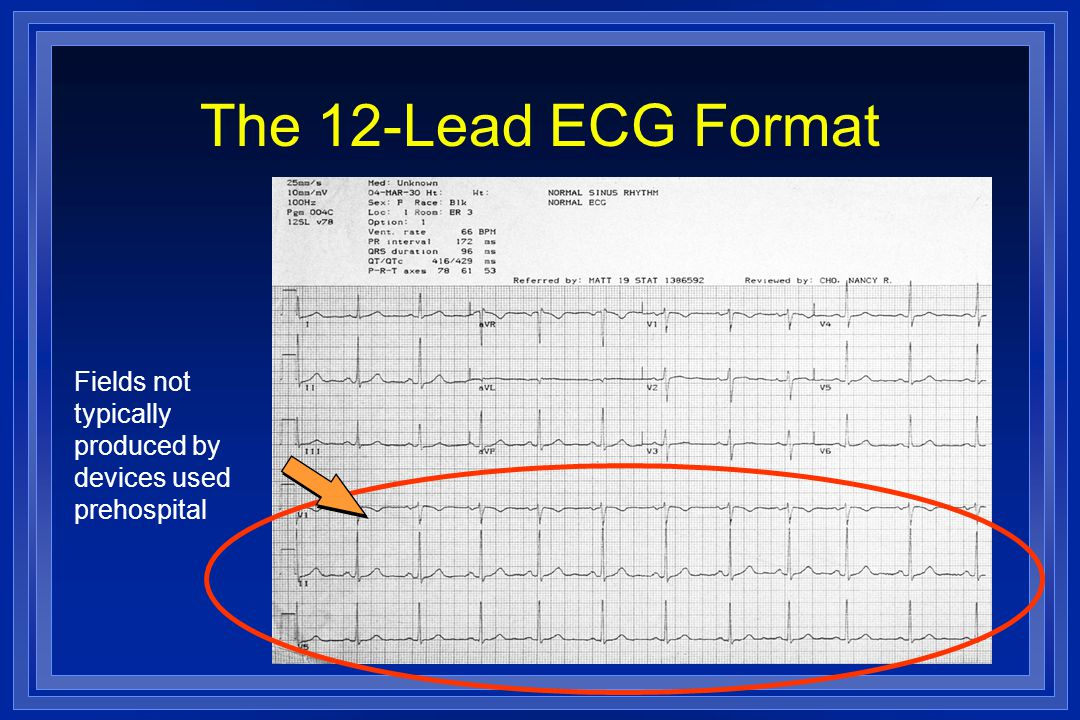 The 12-Lead ECG Format Fields not typically produced by devices used prehospital