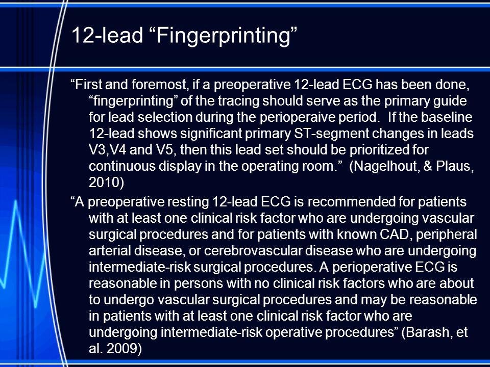 12-lead Fingerprinting
