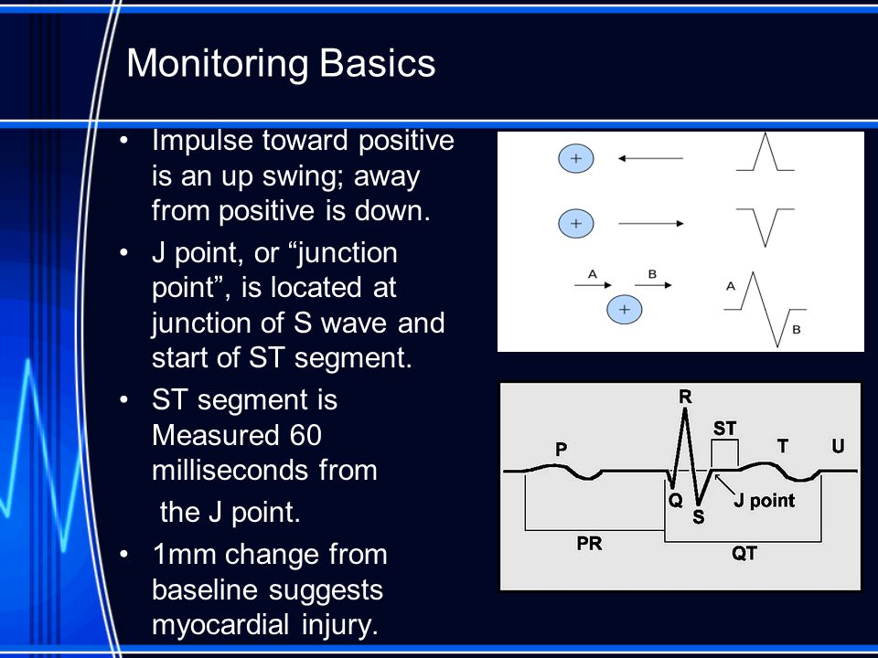 Monitoring Basics Impulse toward positive is an up swing; away from positive is down.