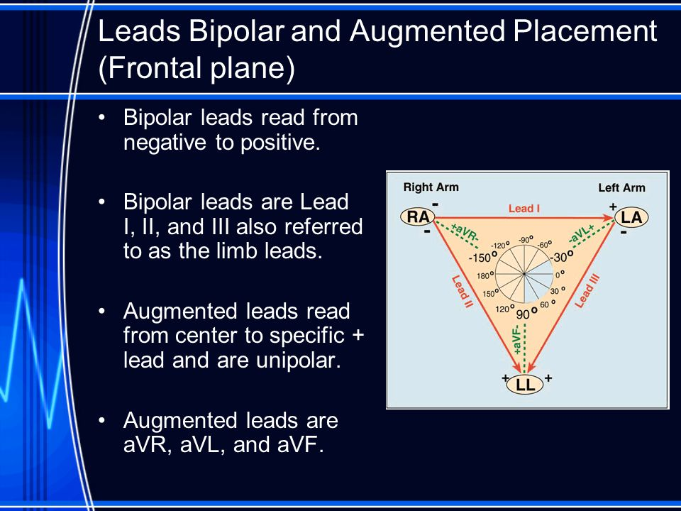 Leads Bipolar and Augmented Placement (Frontal plane)