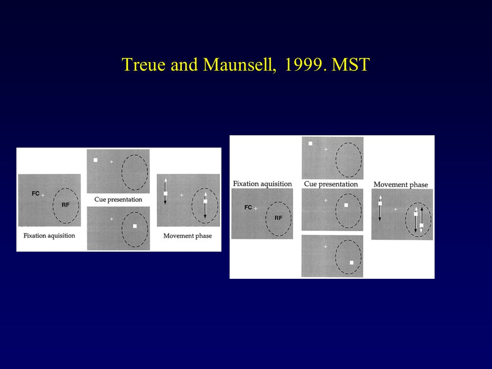 Treue and Maunsell, 1999. MST