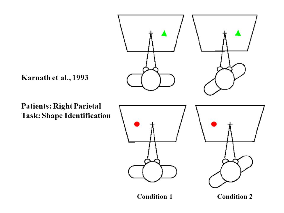 Patients: Right Parietal Task: Shape Identification