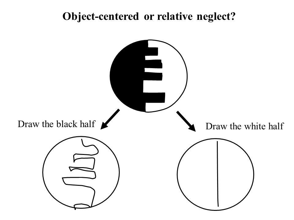 Object-centered or relative neglect