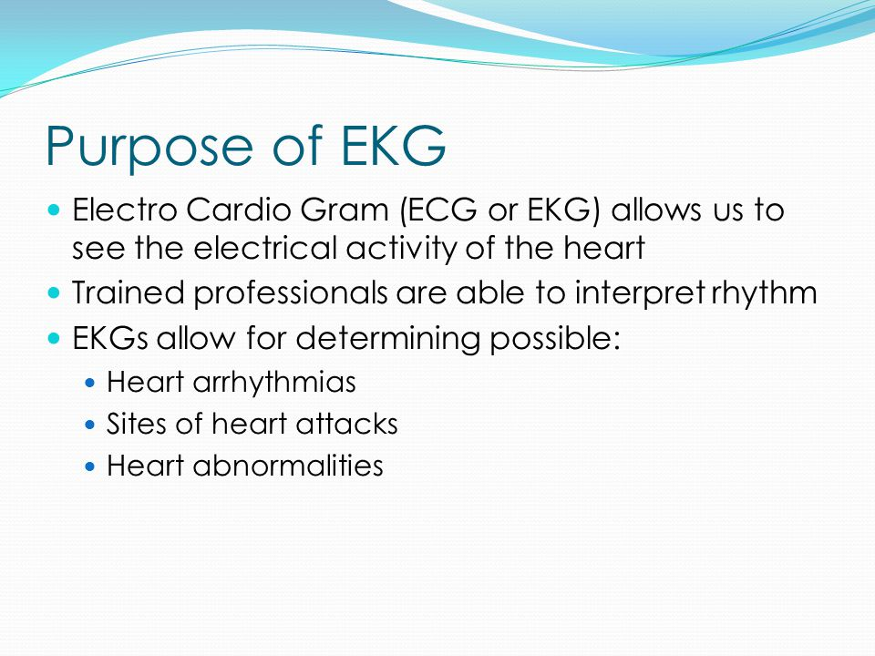Purpose of EKG Electro Cardio Gram (ECG or EKG) allows us to see the electrical activity of the heart.