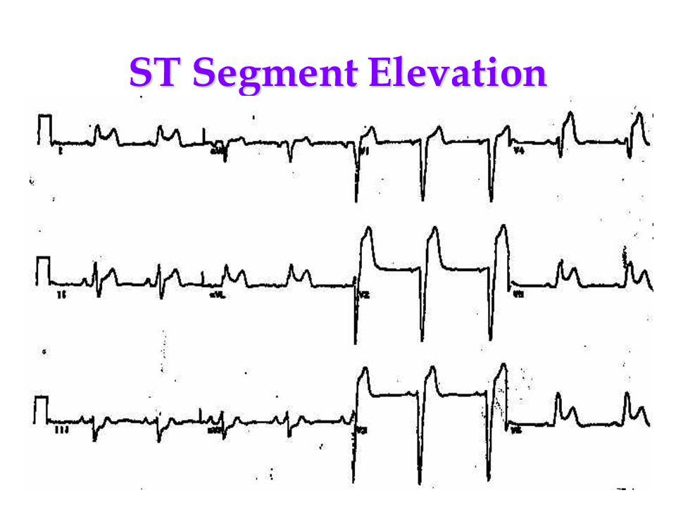 ST Segment Elevation