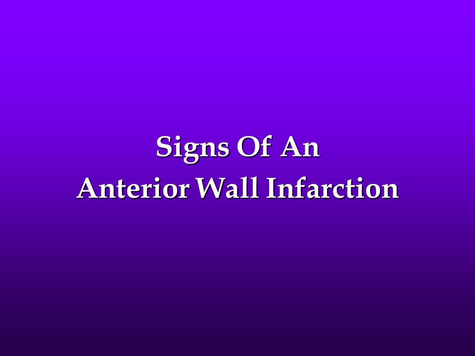 Anterior Wall Infarction