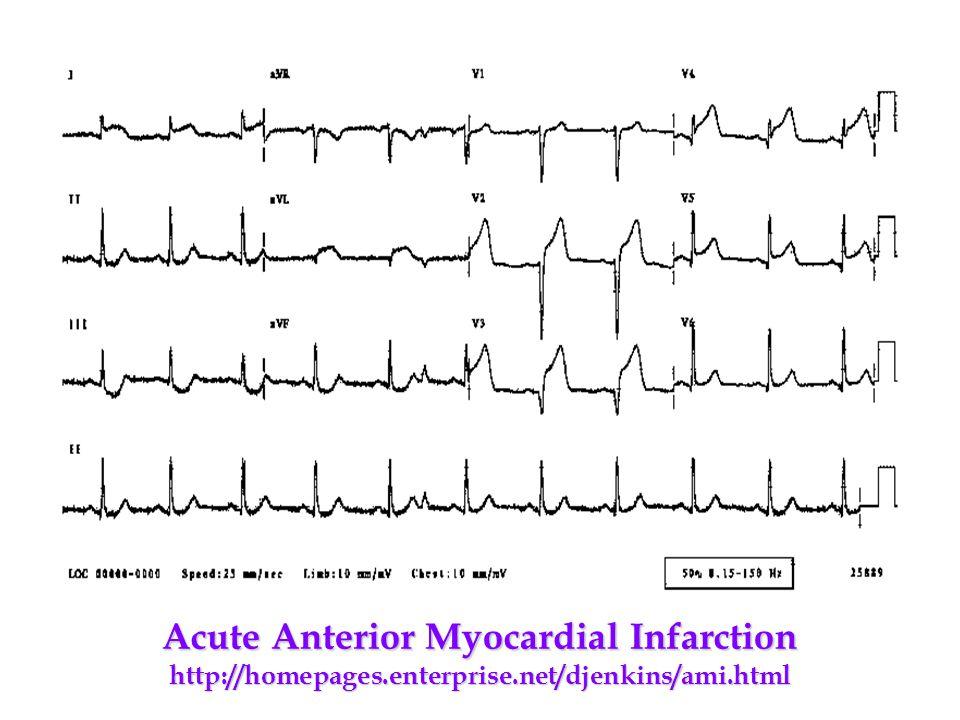 Acute Anterior Myocardial Infarction http://homepages. enterprise