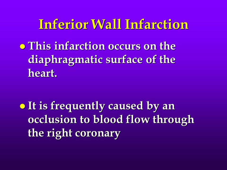 Inferior Wall Infarction