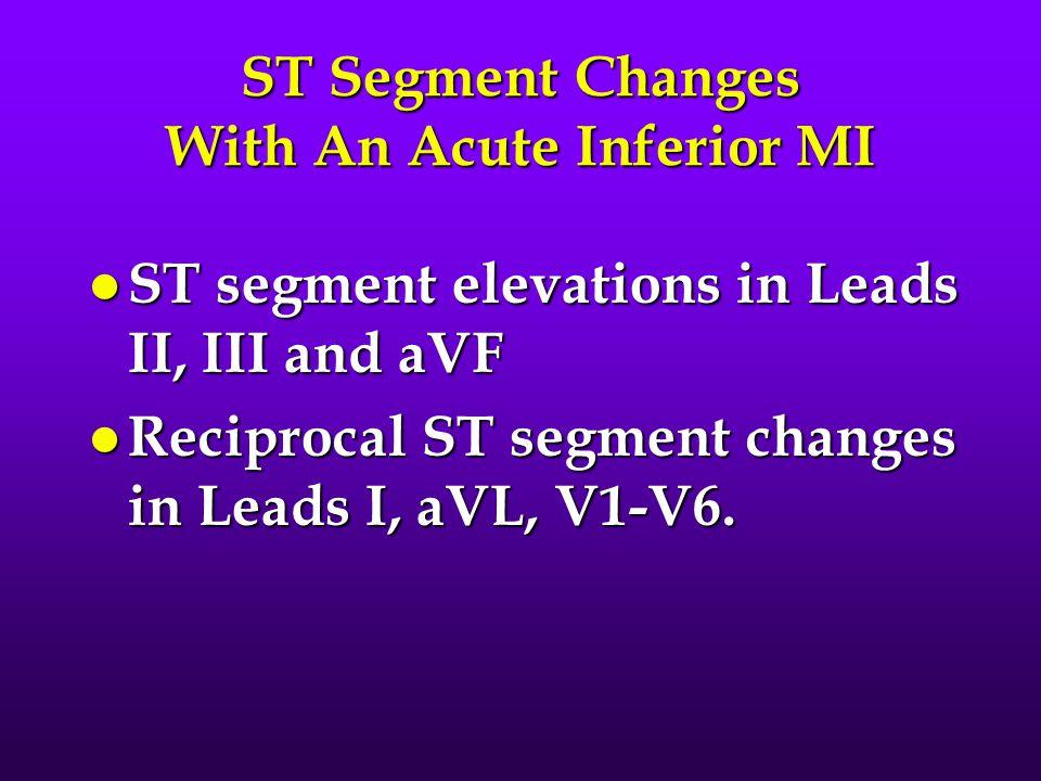 ST Segment Changes With An Acute Inferior MI