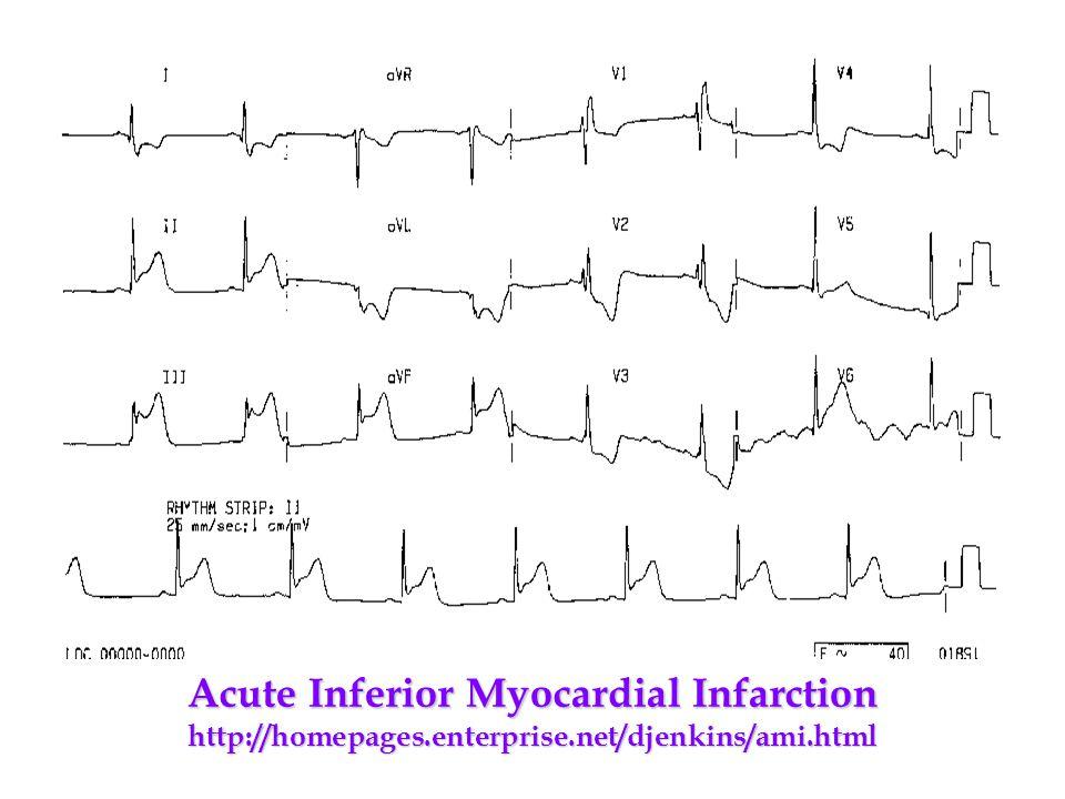 Acute Inferior Myocardial Infarction http://homepages. enterprise