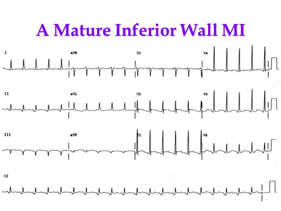 A Mature Inferior Wall MI