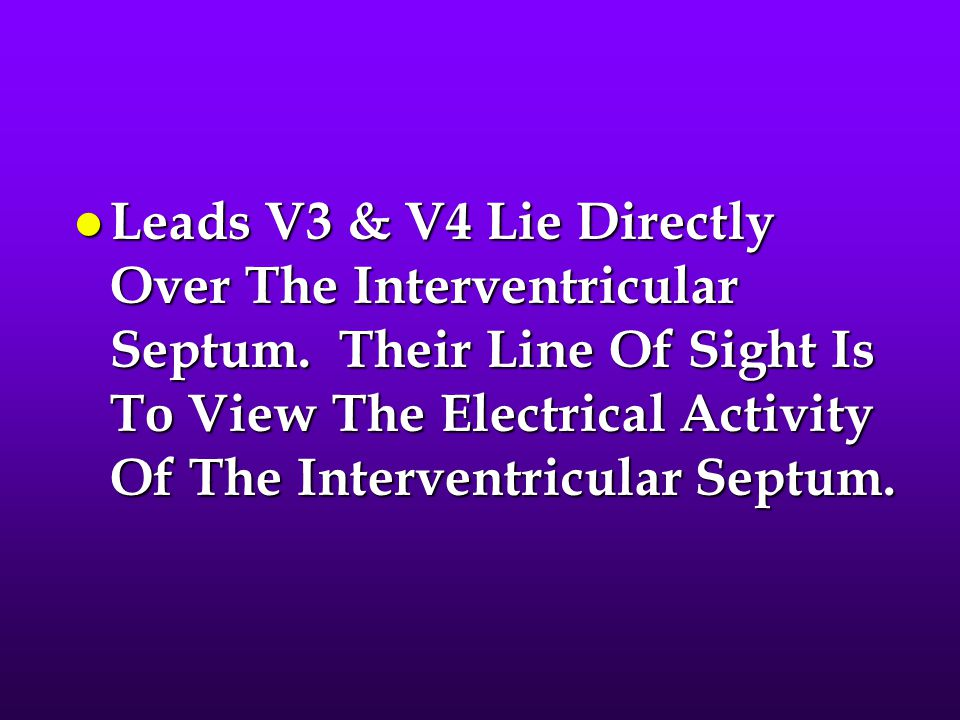 Leads V3 & V4 Lie Directly Over The Interventricular Septum