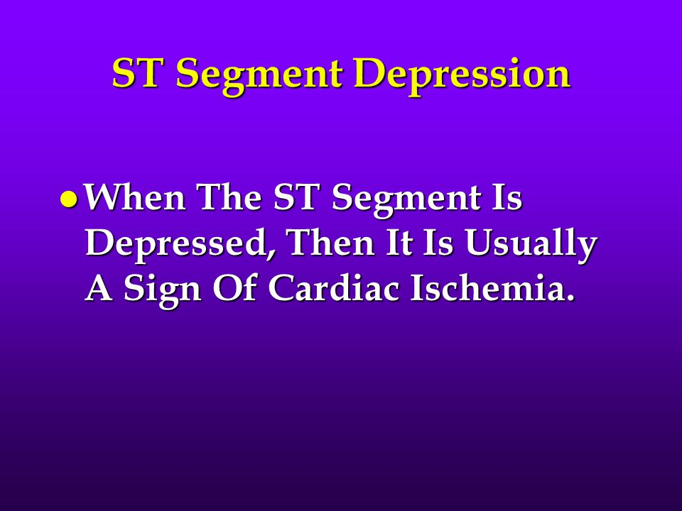 ST Segment Depression When The ST Segment Is Depressed, Then It Is Usually A Sign Of Cardiac Ischemia.