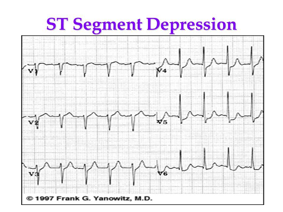 ST Segment Depression