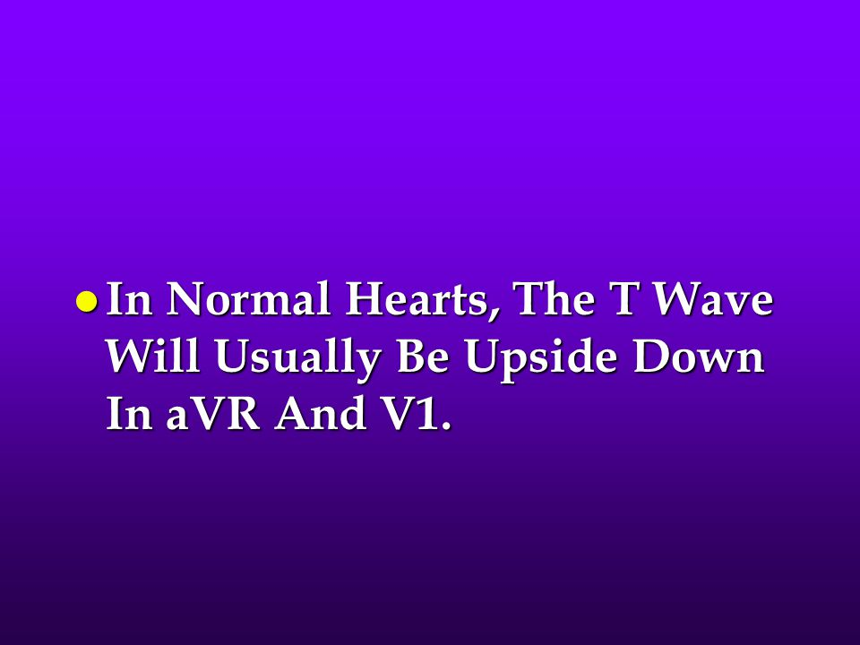 In Normal Hearts, The T Wave Will Usually Be Upside Down In aVR And V1.
