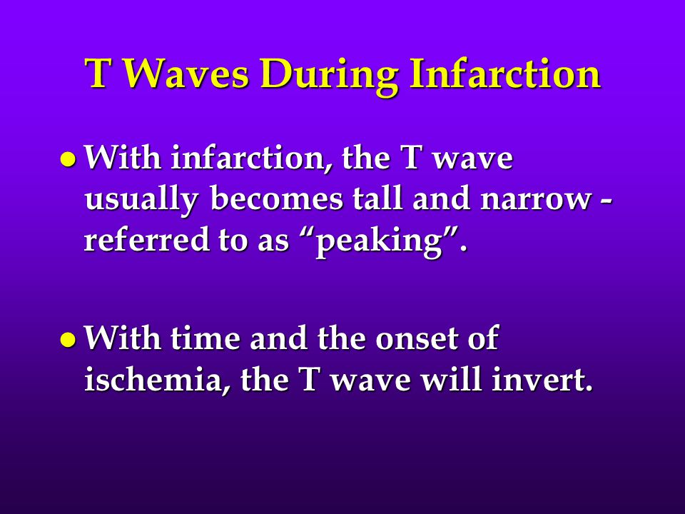 T Waves During Infarction