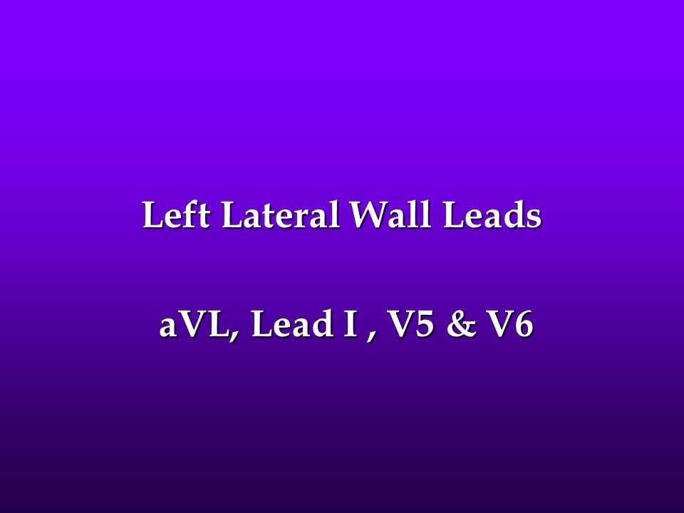 Left Lateral Wall Leads