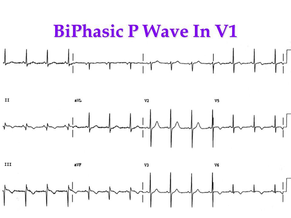 BiPhasic P Wave In V1