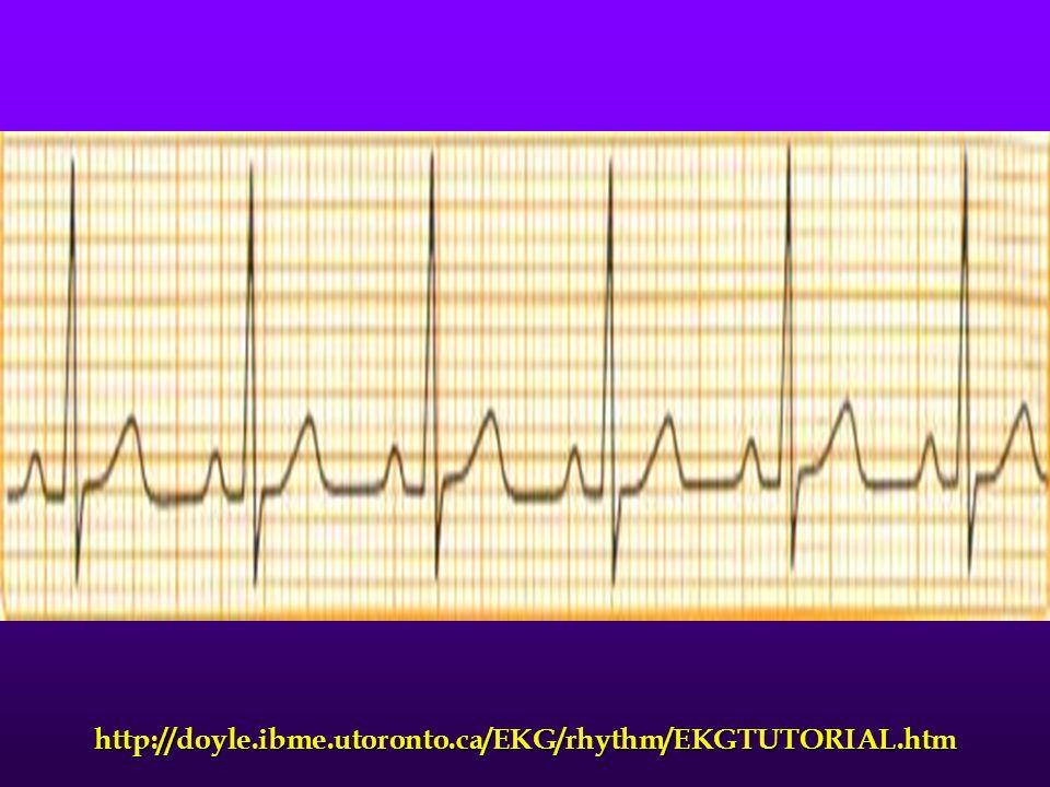 http://doyle.ibme.utoronto.ca/EKG/rhythm/EKGTUTORIAL.htm