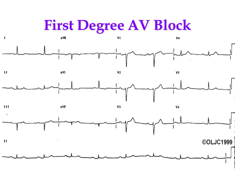 First Degree AV Block