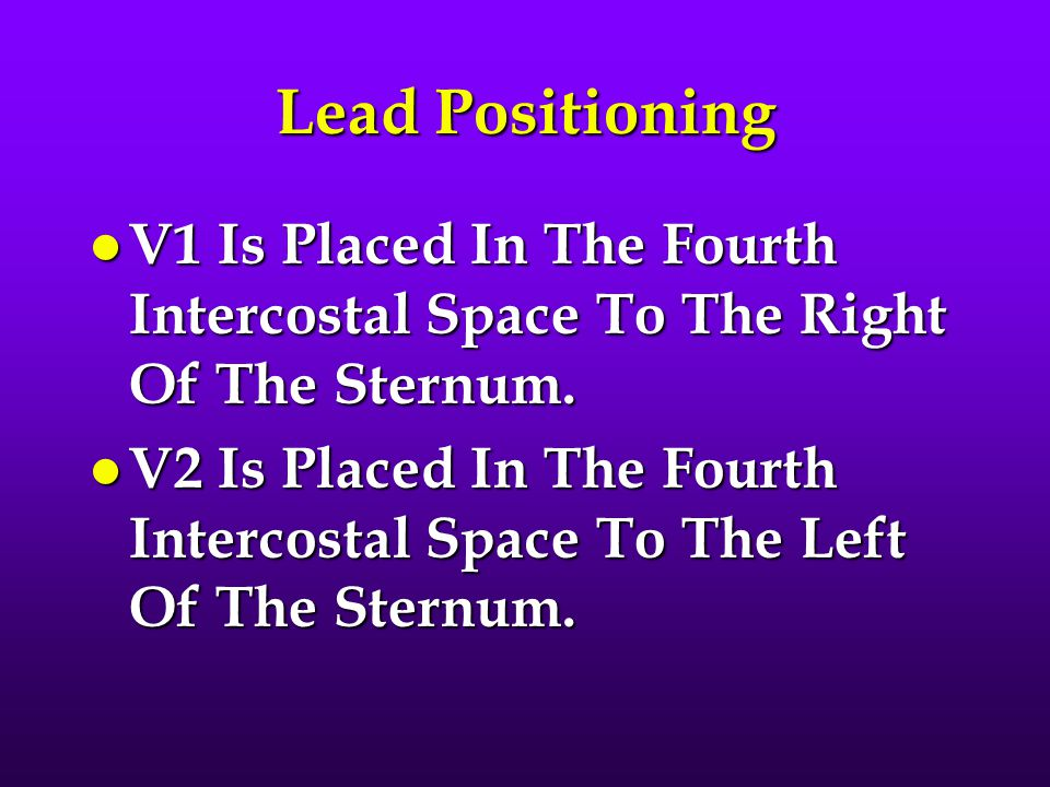 Lead Positioning V1 Is Placed In The Fourth Intercostal Space To The Right Of The Sternum.