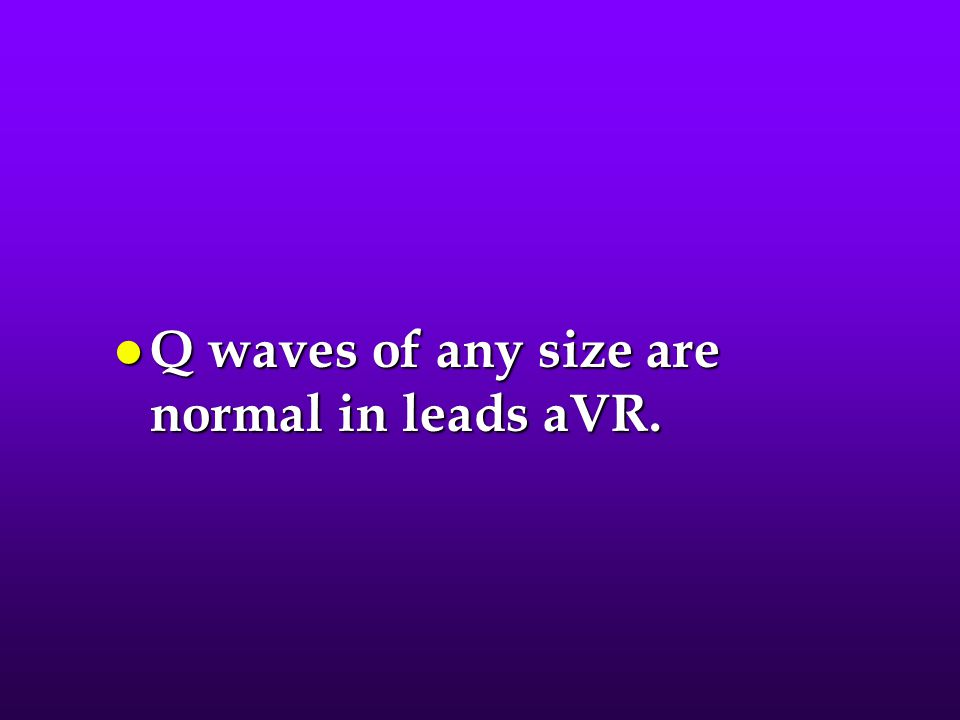 Q waves of any size are normal in leads aVR.