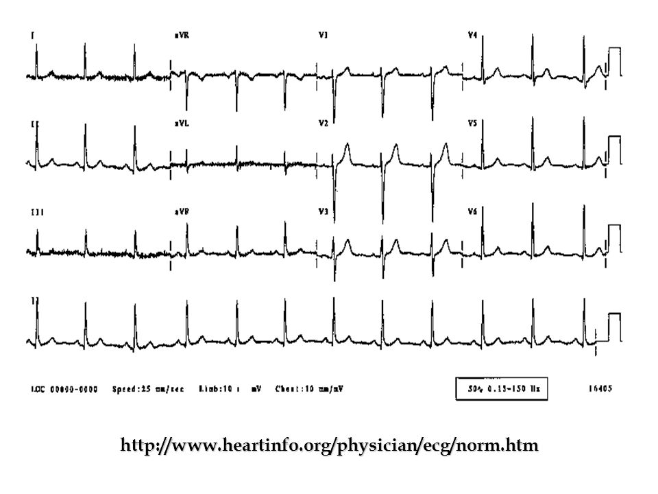 http://www.heartinfo.org/physician/ecg/norm.htm