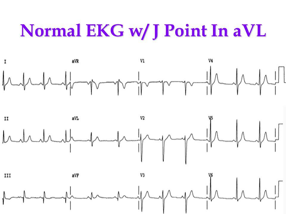 Normal EKG w/ J Point In aVL