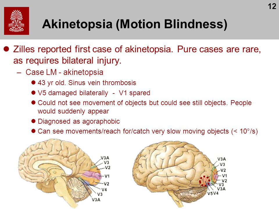 Akinetopsia (Motion Blindness)