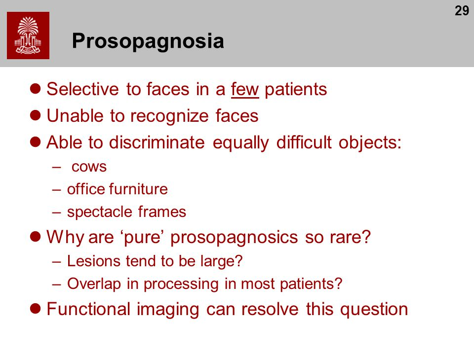 Prosopagnosia Selective to faces in a few patients