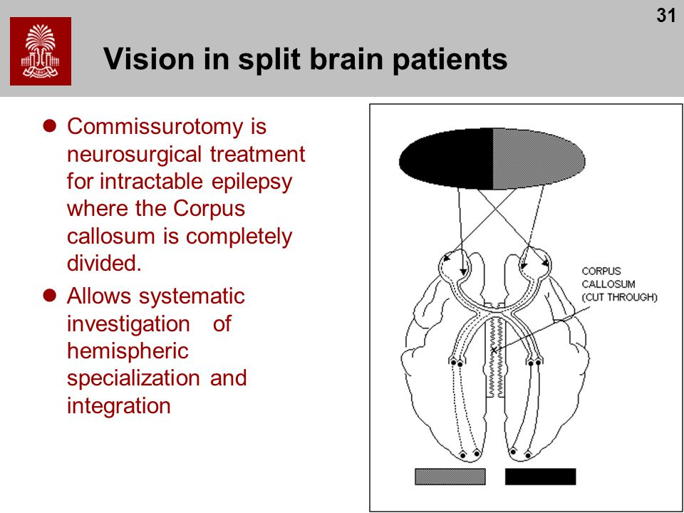 Vision in split brain patients
