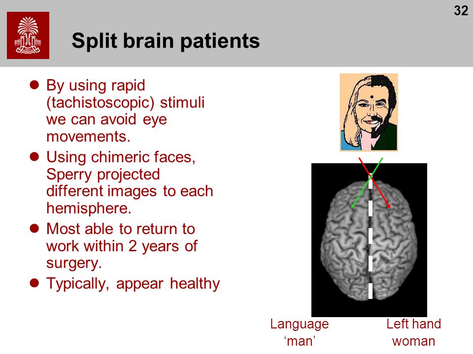 Split brain patients By using rapid (tachistoscopic) stimuli we can avoid eye movements.