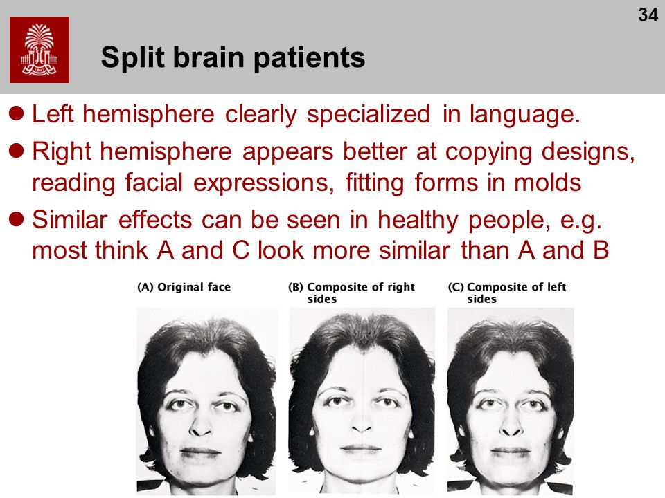 Split brain patients Left hemisphere clearly specialized in language.