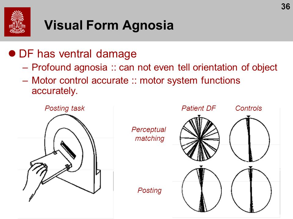 Visual Form Agnosia DF has ventral damage