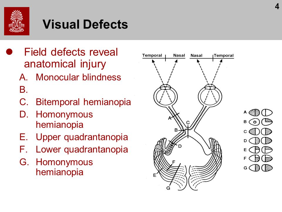 Visual Defects Field defects reveal anatomical injury