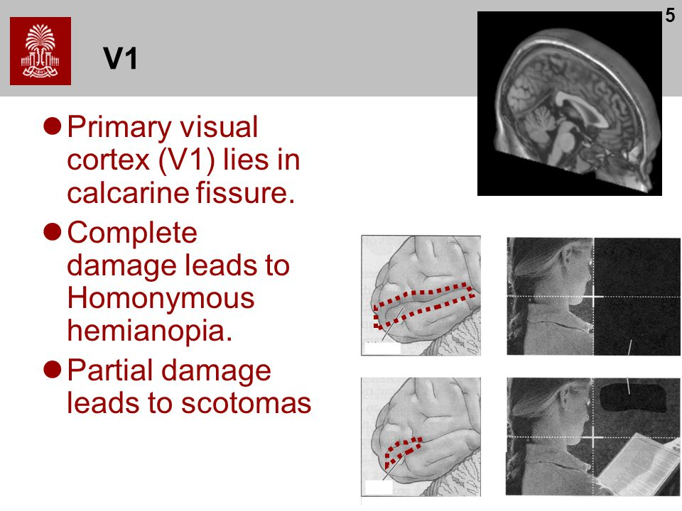 V1 Primary visual cortex (V1) lies in calcarine fissure. Complete damage leads to Homonymous hemianopia.