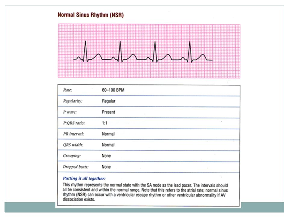 Sinus tachycardia and sinus bradycardia if all these conditions met but rate is faster or slower, respectively.