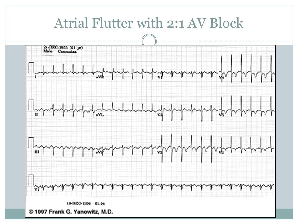 Atrial Flutter with 2:1 AV Block