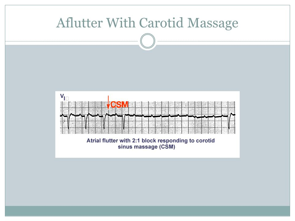 Aflutter With Carotid Massage