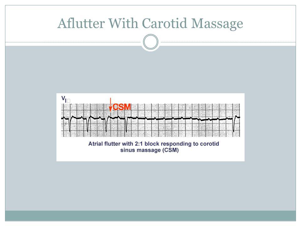 Aflutter With Carotid Massage