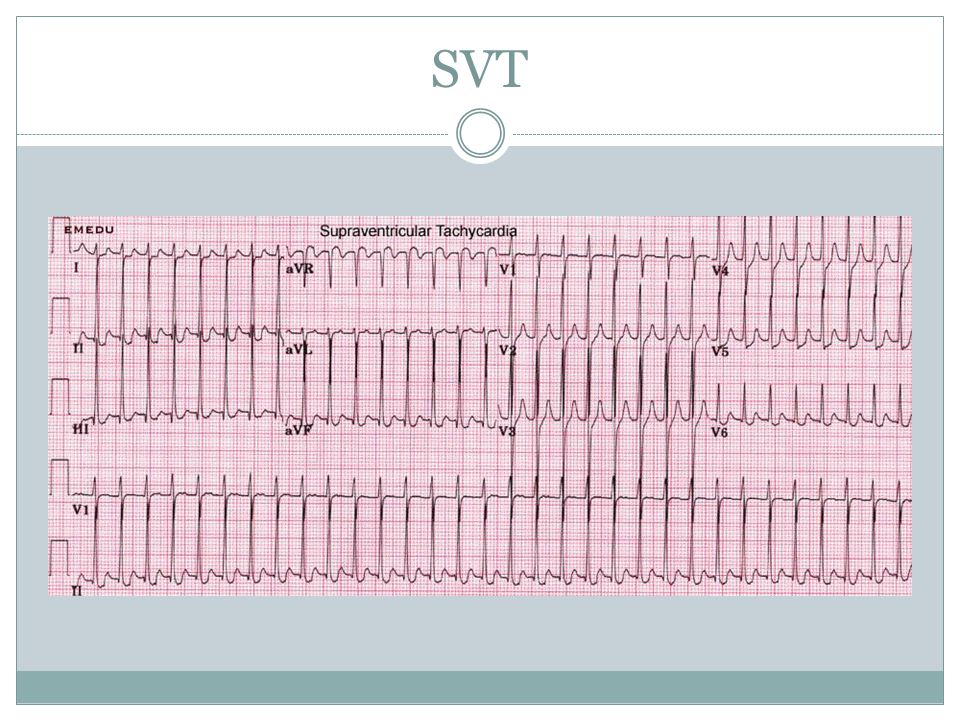 SVT No p waves, regular
