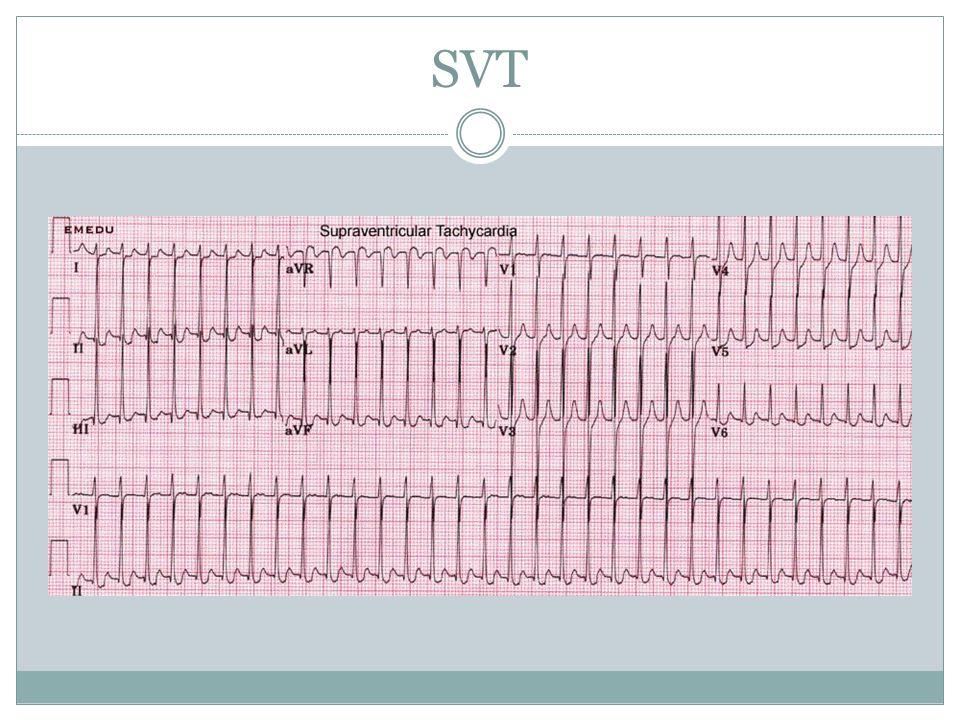 SVT No p waves, regular