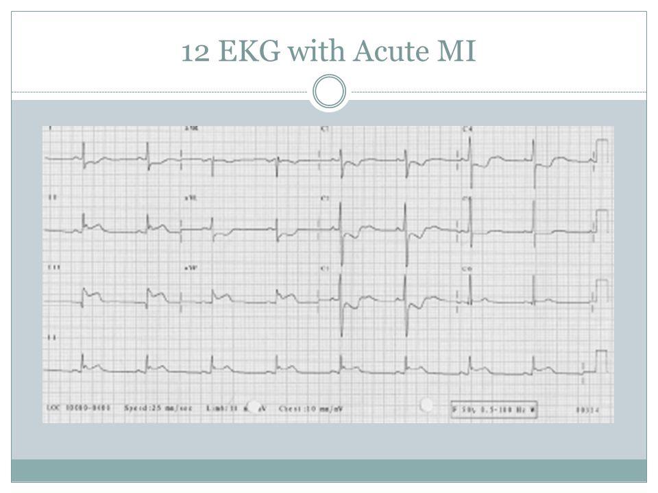 12 EKG with Acute MI