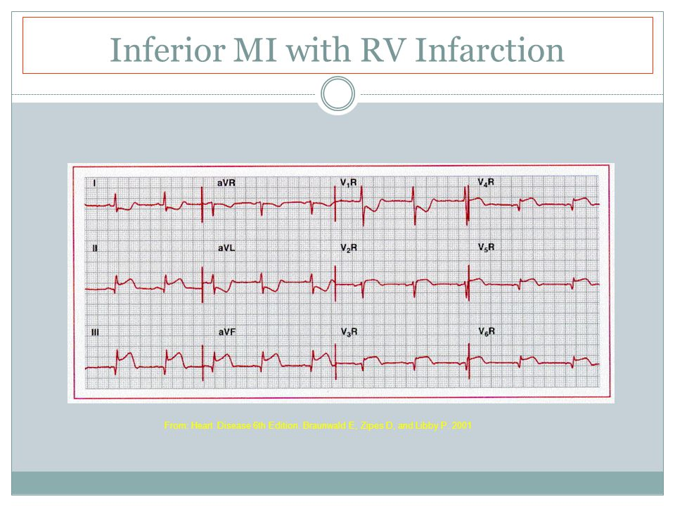 Inferior MI with RV Infarction