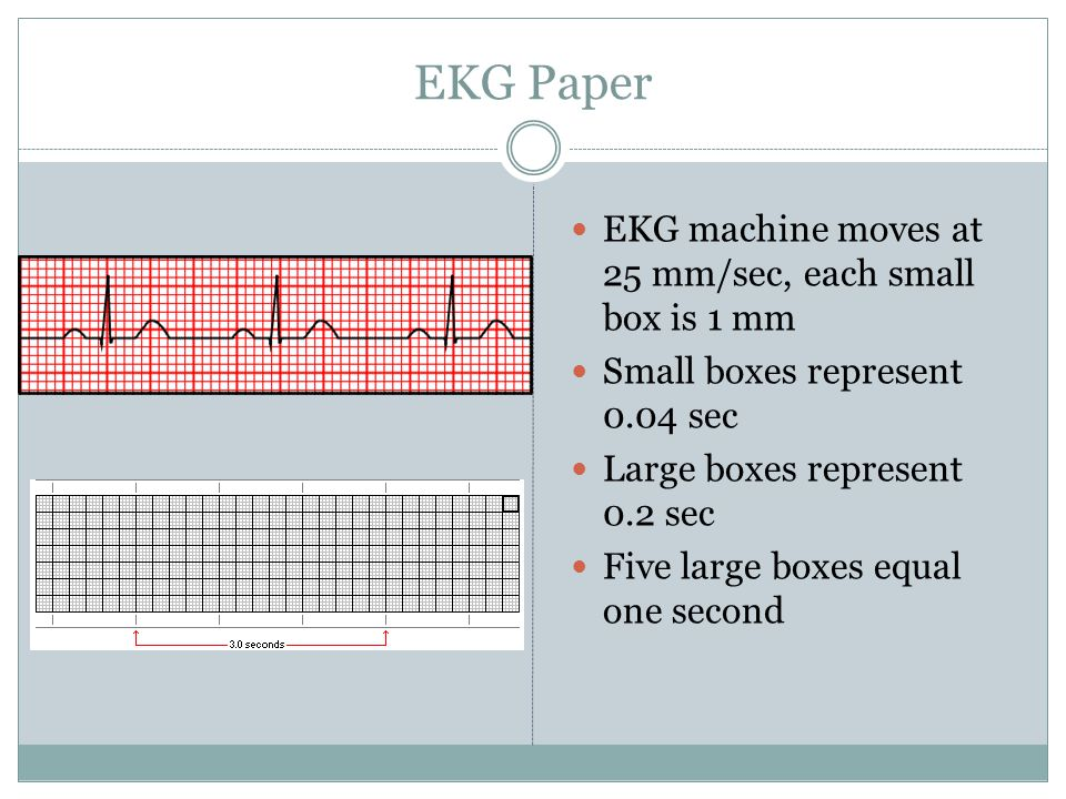 EKG Paper EKG machine moves at 25 mm/sec, each small box is 1 mm