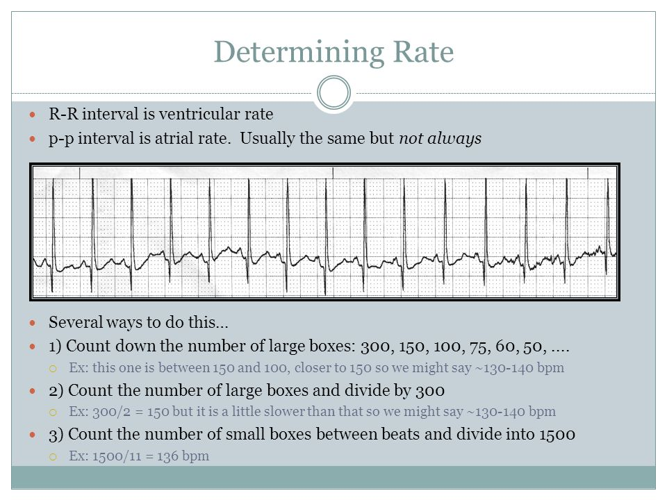 Determining Rate R-R interval is ventricular rate
