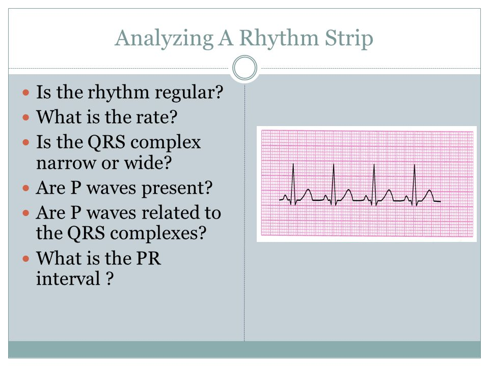 Analyzing A Rhythm Strip