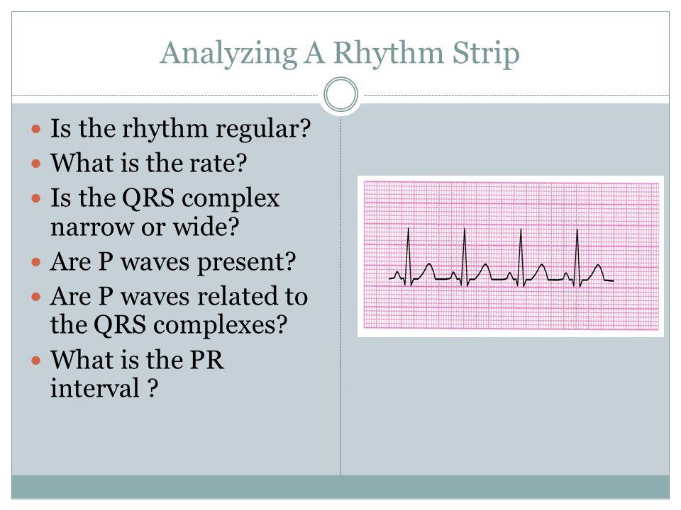 Analyzing A Rhythm Strip