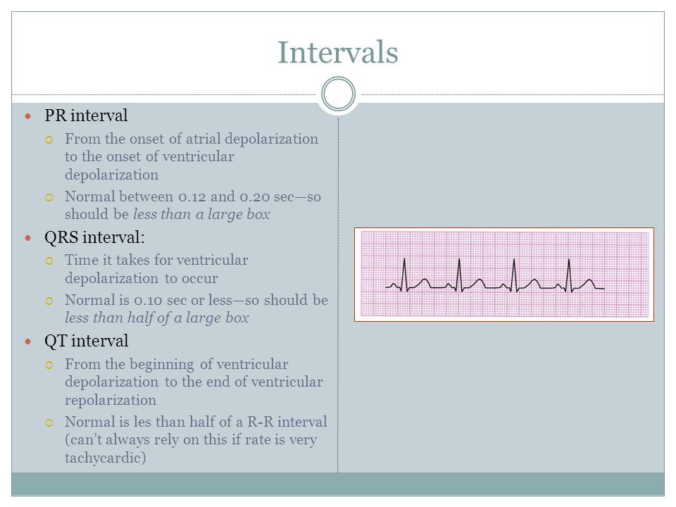 Intervals PR interval QRS interval: QT interval
