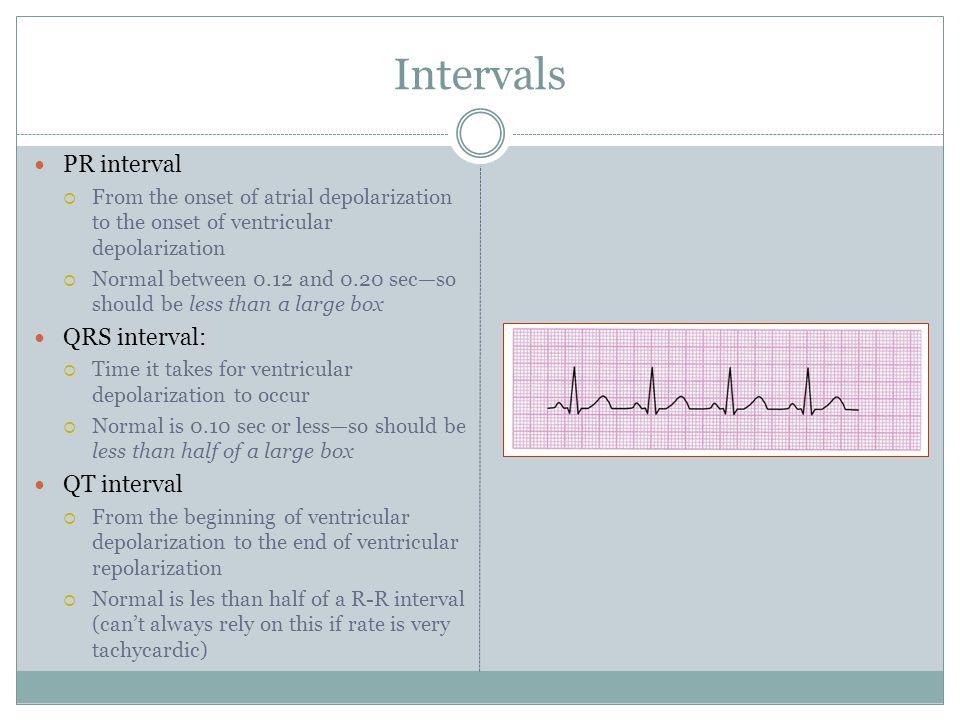 Intervals PR interval QRS interval: QT interval